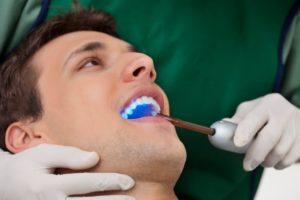 A man receiving teeth whitening.