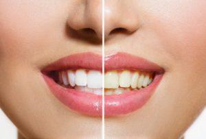 Half white teeth.